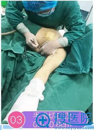 熊猛院长抽脂手术切口控制在0.5-0.8CM