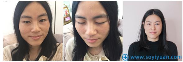 在上海美莱做无痕双眼皮手术前