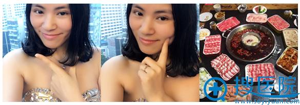 上海美莱无痕双眼皮案例图