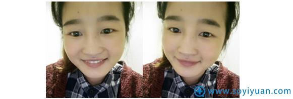 在上海美莱做双眼皮手术前