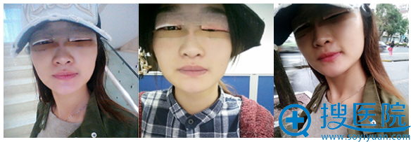 全切双眼皮术后三天效果图