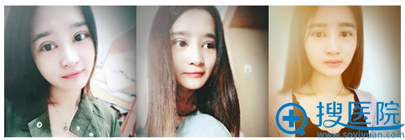 上海美莱王琳双眼皮案例术后7天