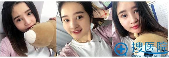 上海美莱王琳医生做双眼皮怎么样