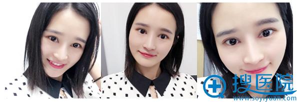 上海美莱王琳医生做的双眼皮案例