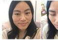上海美莱何祥龙做双眼皮怎么样?无痕双眼皮真人案例和价格表