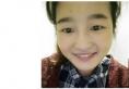 因为喜欢上海美莱王琳医生的手术风格所以找她做了全切双眼皮
