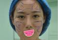 分享下我在沈阳蓝天找黄瑞兴做全脸脂肪二次填充术后的真实感受