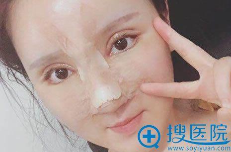 做完眼睛和鼻子修复7天恢复照
