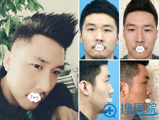 大连何栋良假体隆鼻修复真人案例