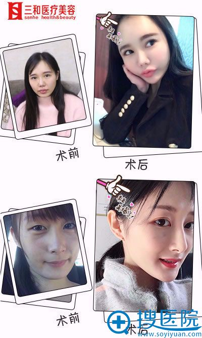 长沙三和刘宇自体脂肪填充案例
