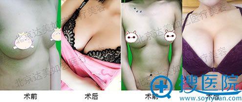 北京达美如艺国海军自体脂肪隆胸案例