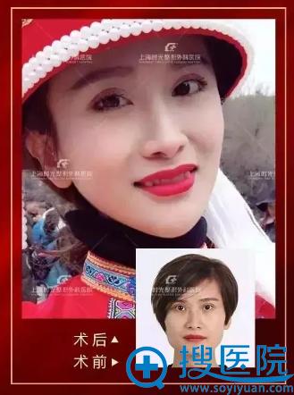 上海时光何晋龙做的下颌角整形案例