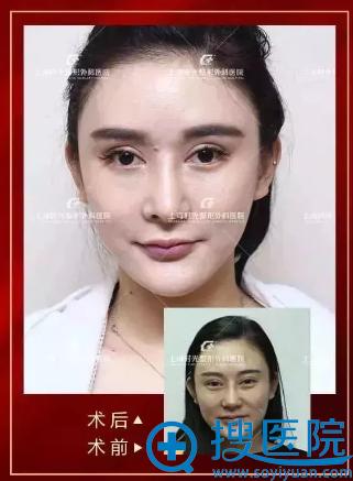 上海时光何晋龙做的颧骨下颌角和双眼皮失败修复案例