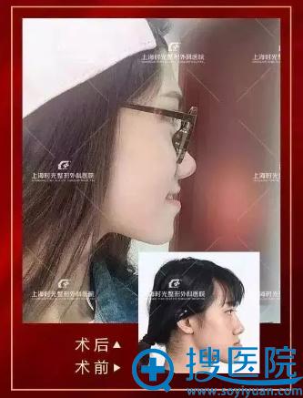 上海时光何晋龙做的反颌整形案例