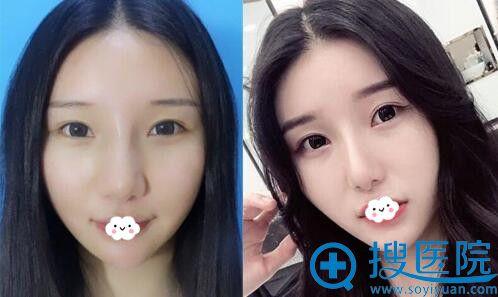 扬州雷医生割双眼皮真人案例效果图