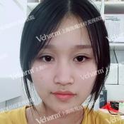 线雕隆鼻失败后我找上海玫瑰整形医院赵延峰博士做了隆鼻修复