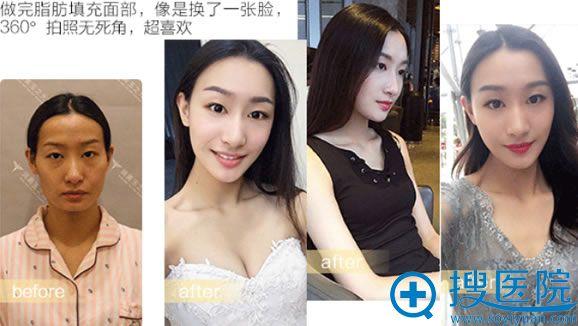 北京玉之光王明利自体脂肪填充案例