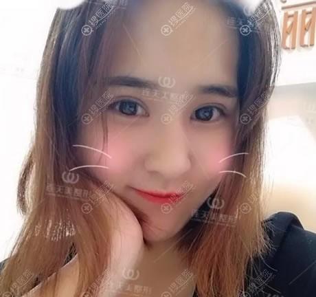 南京连天美医院厉立辉双眼皮案例