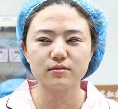 刚做完双眼皮修复和开眼角图片