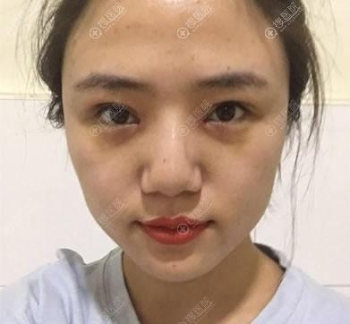 北京长虹医院崔鹏双眼皮修复案例8天效果