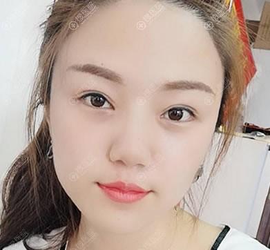 北京长虹医院双眼皮修复案例4个月效果