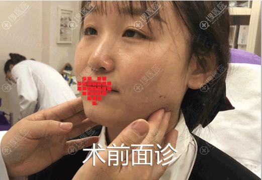 宁波珈禾整形医生面诊确定瘦脸方案