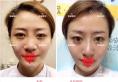 太原丽都员工整形案例 线雕隆鼻+面部线雕真实术后效果