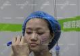 南京线雕哪家医院做的好?看南京施尔美陈锦添面部线雕真人案例