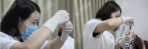 经过离心处理后,可以提取高浓度PRF干细胞