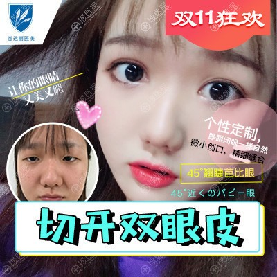 上海伯思立(百达丽)徐晓斐做的双眼皮案例