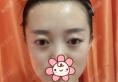 新疆乌市黎美整形许黎说我上眼睑脂肪厚,所以做了切开双眼皮