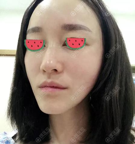 面部埋线提升术后2天拉扯感比较强