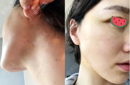埋线提升术后脸上基本没有痕迹