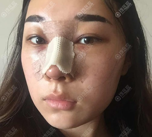 刚做完肋软骨隆鼻手术照片