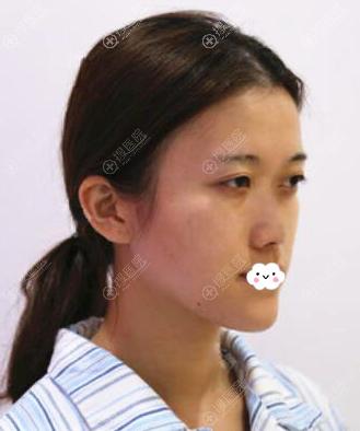 东莞君熠刘伟杰硅胶假体隆鼻综合整形真人案例
