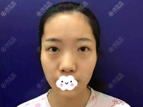 术前菱形脸、塌鼻梁和眼袋明显