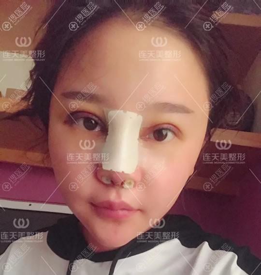 做完双眼皮和隆鼻4天恢复照