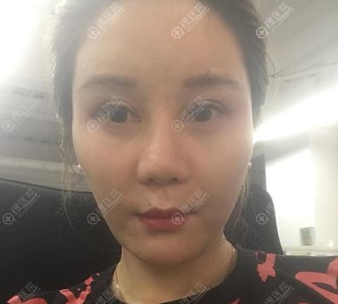 在重庆郑荃丽格做线雕隆鼻前