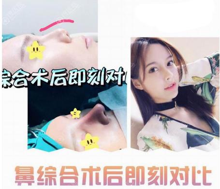 上海瑞欧陈超群做的隆鼻案例