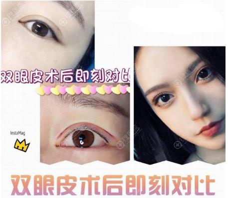 上海瑞欧网红院长陈超群做的双眼皮案例