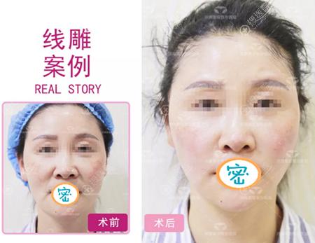 60后美女面部线雕提升真实案例
