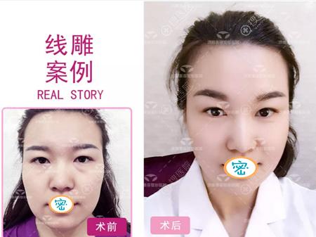 80后美女做面部线雕提升后重回青春