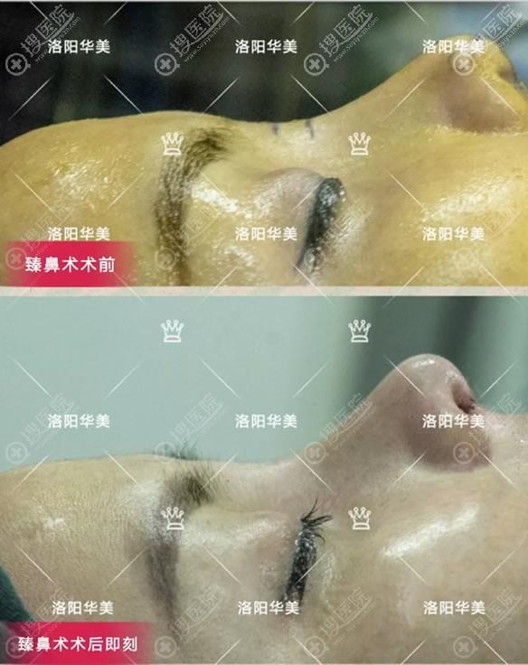 洛阳华美王锦文自体软骨鼻综合案例即刻效果图