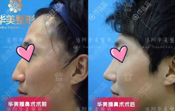 洛阳华美宋俊岭驼峰鼻综合矫正案例
