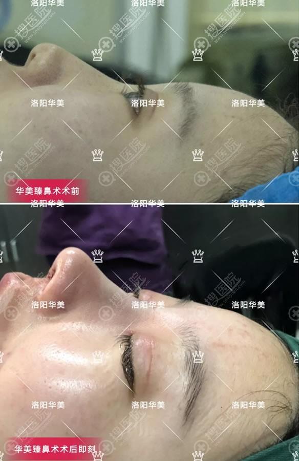 洛阳华美自体软骨鼻综合案例即刻效果