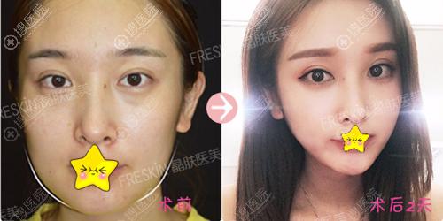 成都晶肤面部线雕+瘦脸针治疗效果
