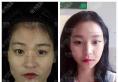 为了不做男人婆,我找上海首尔丽格朴兴植做了下颌角和颧骨内推