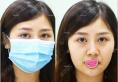 小姐姐在重庆当代找牙祖蒙做面部线雕拯救早衰初老脸的真实图片