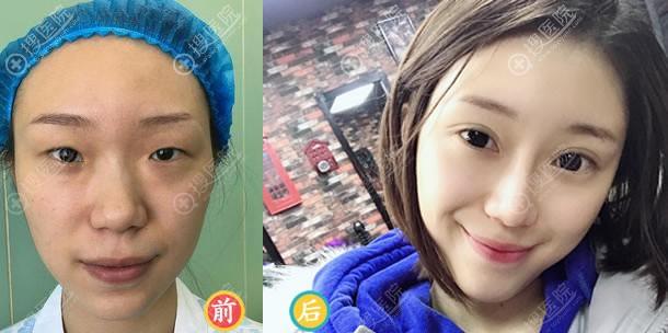 北京常好丽格李莎双眼皮案例
