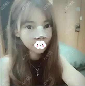 呼和浩特大韩整形医院综合隆鼻2天